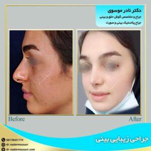 جراحی زیبایی بینی در شیراز