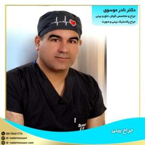 جراح بینی گچساران