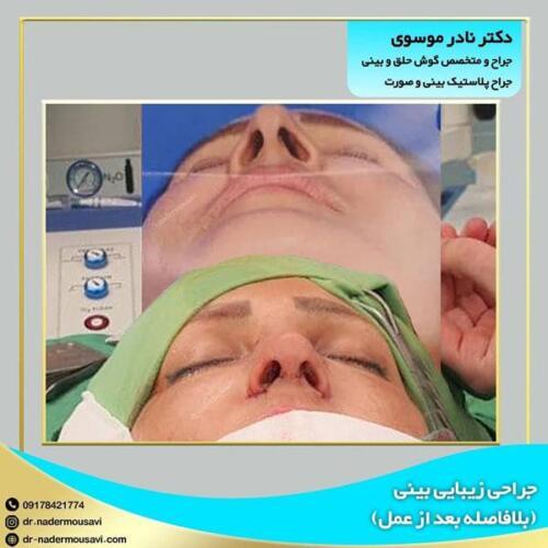 جراحی زیبایی بینی 10
