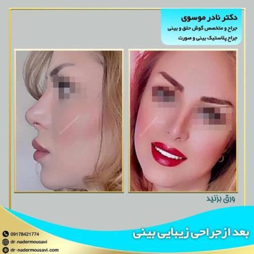 جراحی زیبایی بینی 12