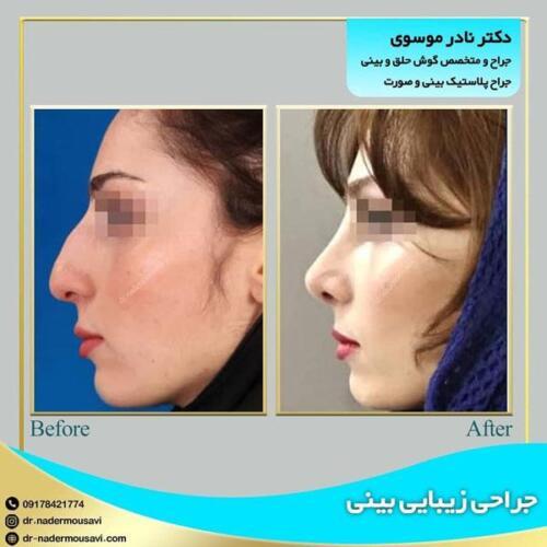 جراحی زیبایی بینی 15