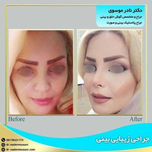 جراحی زیبایی بینی 16