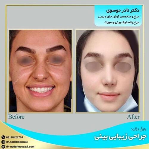 جراحی زیبایی بینی 17