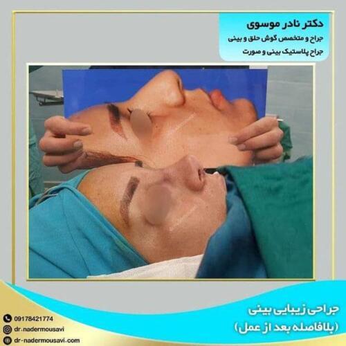 جراحی زیبایی بینی 19