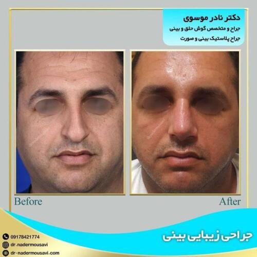 جراحی زیبایی بینی 20