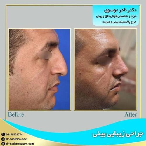 جراحی زیبایی بینی 21