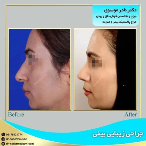 جراحی زیبایی بینی 4