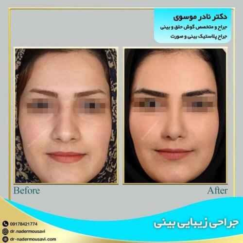 جراحی زیبایی بینی 5