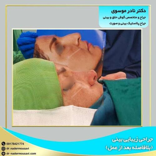 جراحی زیبایی بینی 9